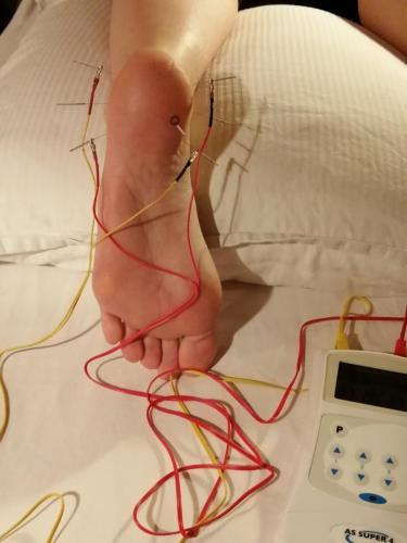 El-akupunktur